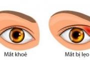 Lẹo Mắt Và Cách Phòng Ngừa